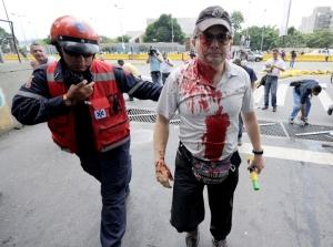 Otro participante herido. Noticia24